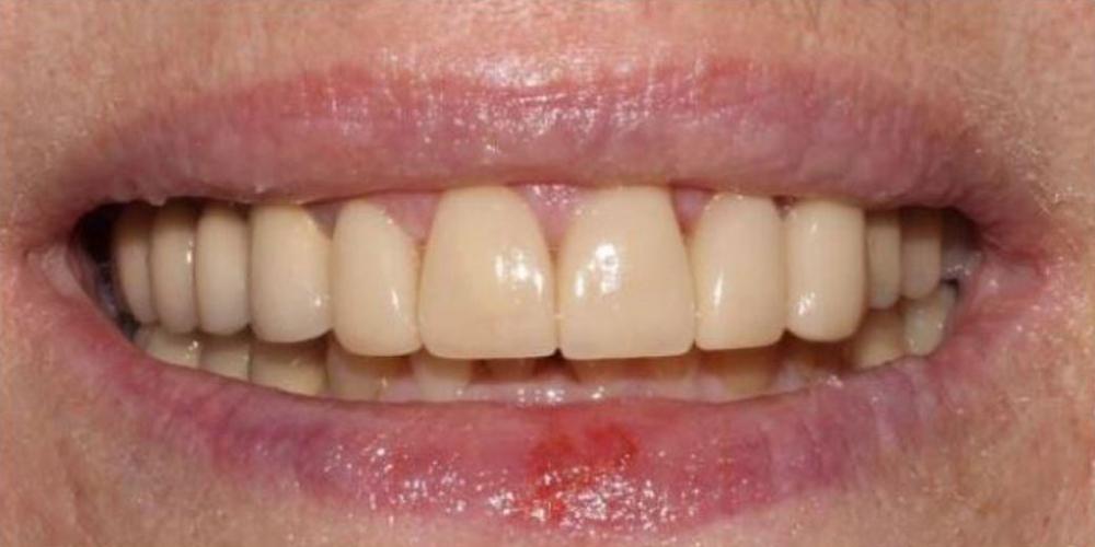 Фото после лечения Протезирование зубов верхней челюсти металлокерамическими и керамическими коронками