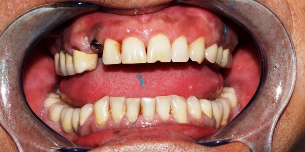 Протезирование на имплантах Ankylos коронка из диоксид циркония