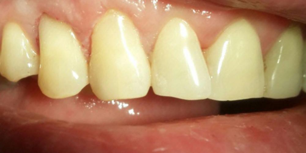 Лечение клиновидного дефекта зубов 1.3, 1.4