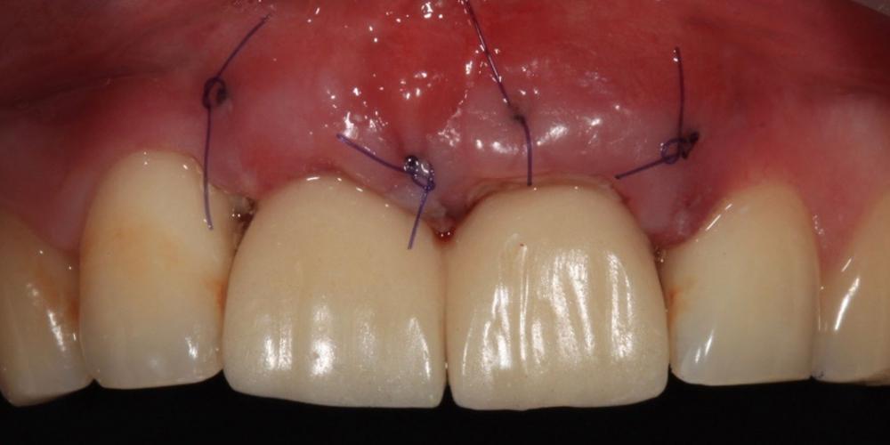 Фото после имплантации и установки временных протезов. Имплантация Дентиум и установка временных коронок на передние зубы