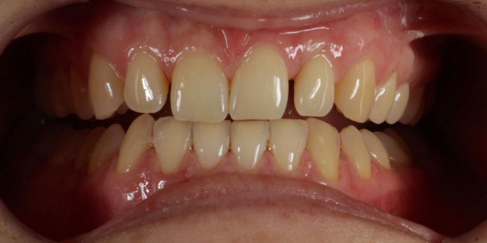 Восстановление центральных зубов верхней челюсти керамическими винирами E.max и отбеливание Zoom 3