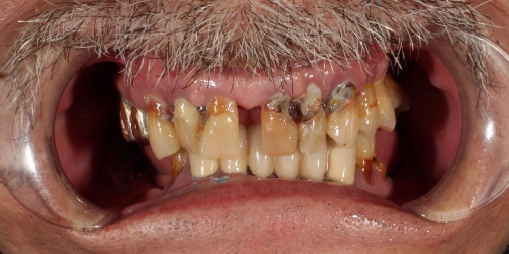 Протезирование условно-съёмными протезами на верхней челюсти (балочное соединение на 4 имплантатах)