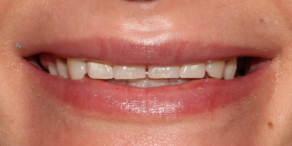 фото -до Восстановление зубов верхней челюсти керамическими винирами E.max
