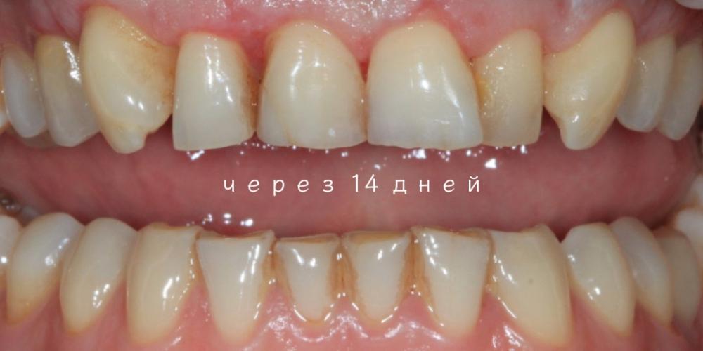 Удлинение коронковой части передних зубов