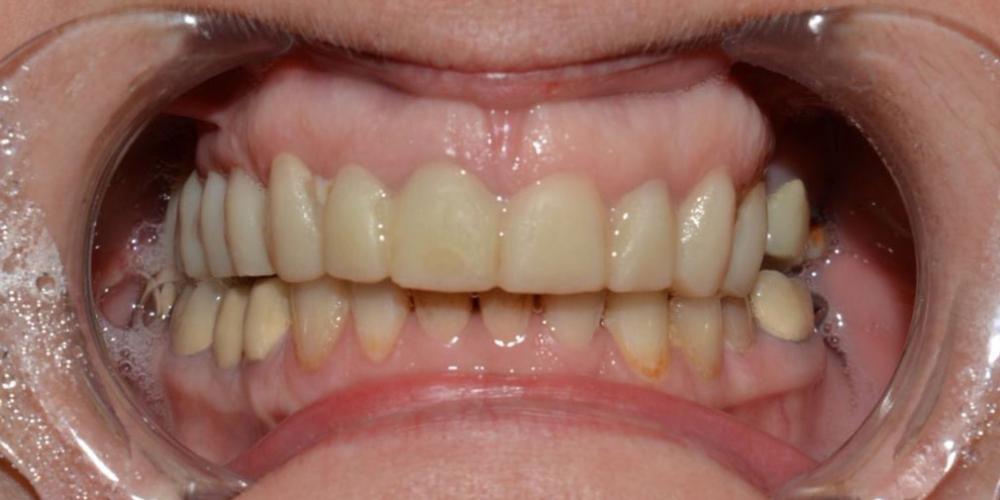 Восстановление формы и эстетики всех зубов коронками и винирами Е-max
