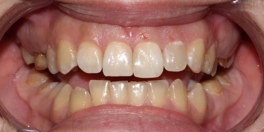 Устранение тёмных пятен между передними верхними зубами
