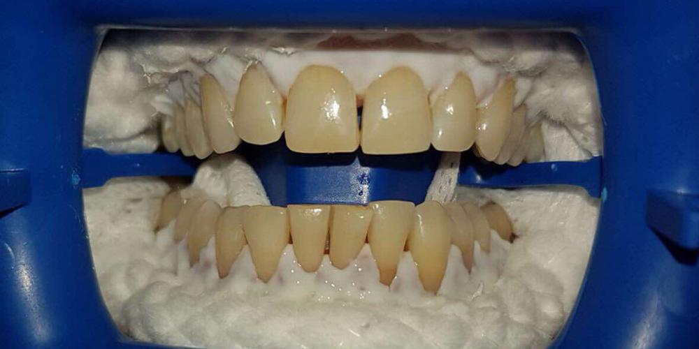 Результат отбеливания зубов ZOOM-3