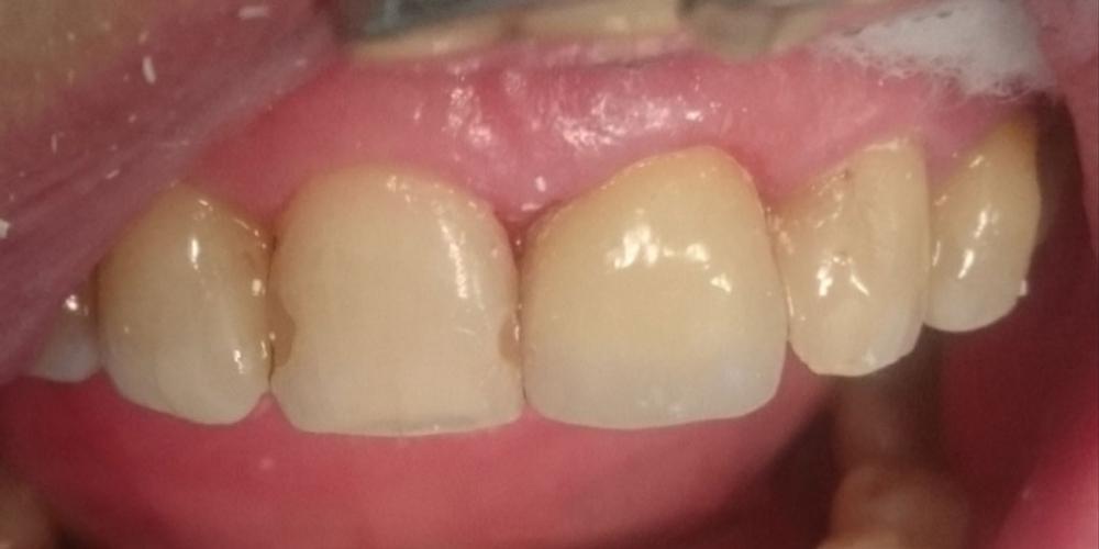 Жалоба на скол коронковой части переднего зуба в результате травмы