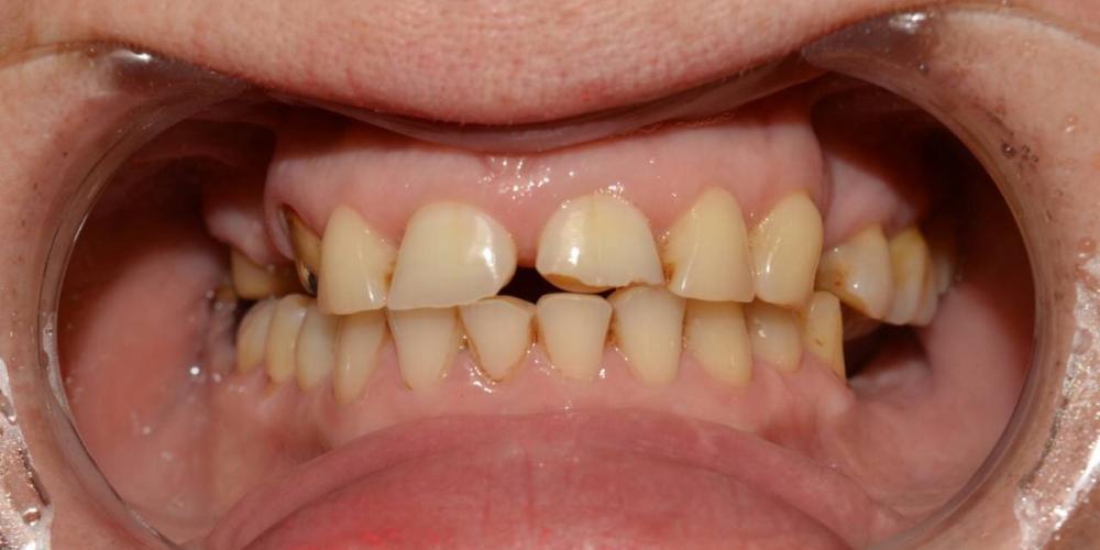 Установка 4 имплантатов для восстановления отсутствующих зубов