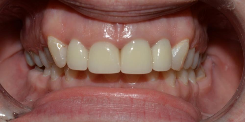 Протезирование цельнокерамическими (E.max) коронками передних зубов фото после
