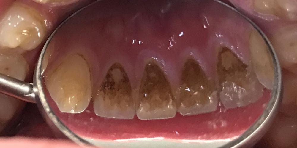 Проведена профессиональная гигиена полости рта, ультразвук, airflow, полировка