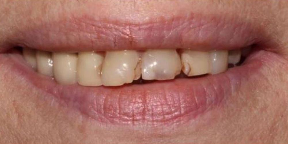 Фото до лечения Протезирование зубов верхней челюсти металлокерамическими и керамическими коронками
