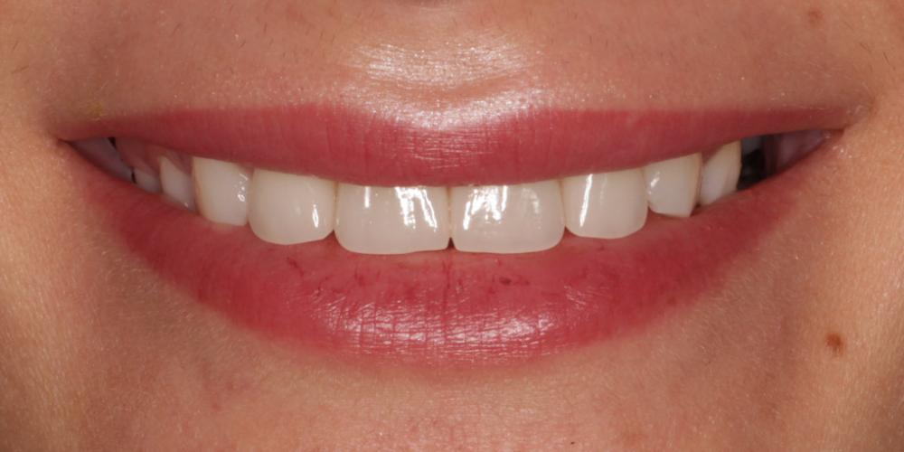 фото -после Восстановление зубов верхней челюсти керамическими винирами E.max