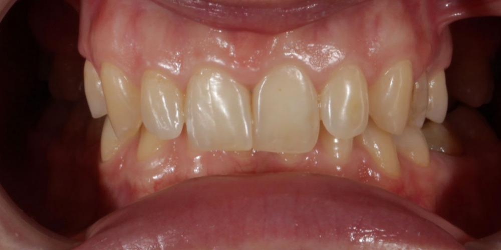 Восстановление зубов верхней челюсти керамическими винирами E.max и отбеливание Zoom3