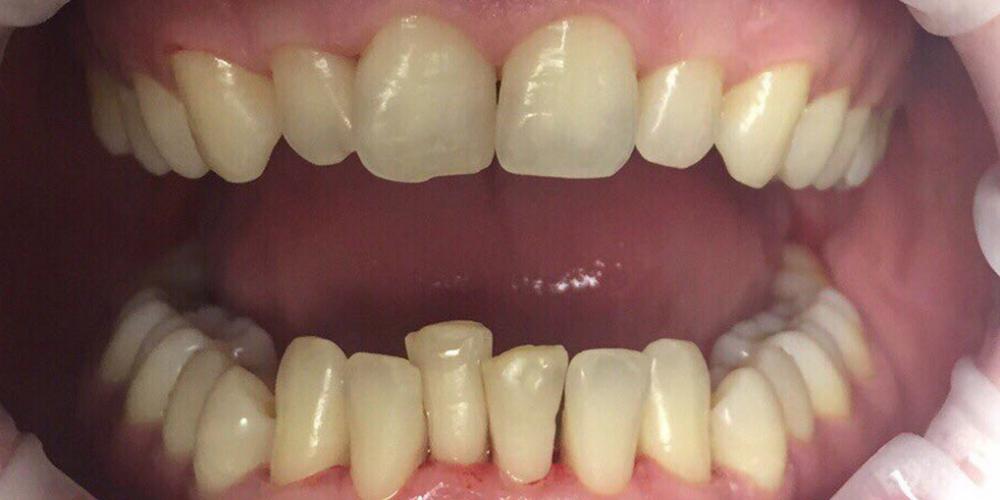 Результат снятия темного налета на зубах