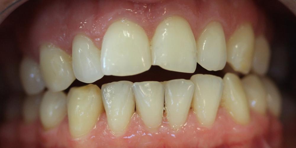 Результат отбеливания зубов системой ZOOM при дисколорите