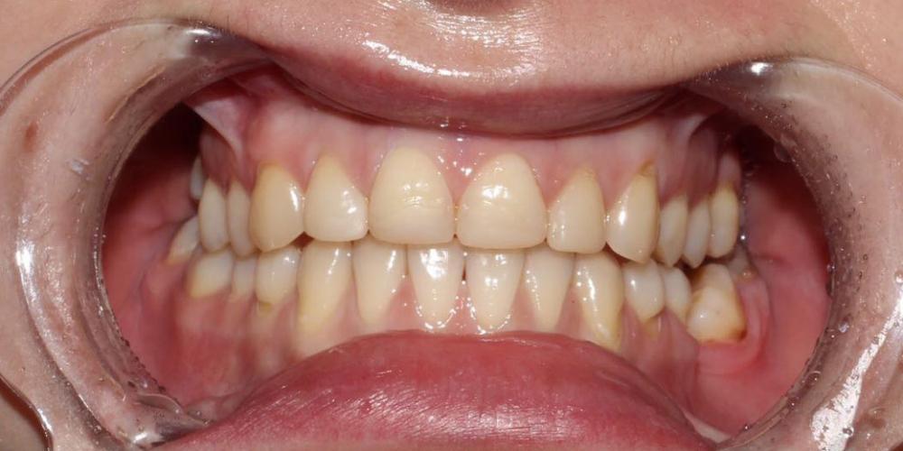 Протезирование верхних зубов керамическими коронками E.max фото до