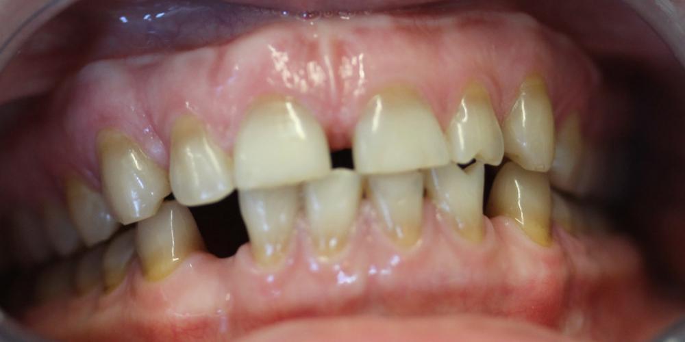 До отбеливания зубов Результат отбеливание зубов системой Zoom