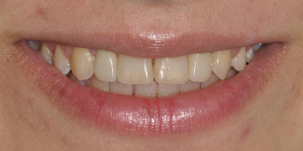 Восстановление боковых резцов верхней челюсти