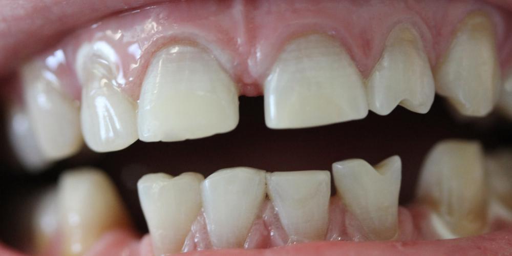 После отбеливания зубов системой ZOOM Результат отбеливание зубов системой Zoom