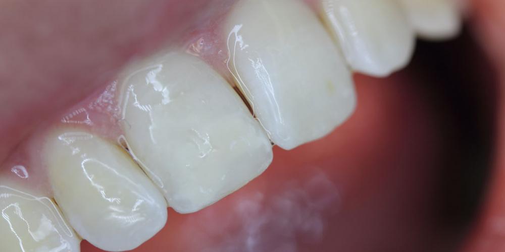 Результат лечения косметического дефекта коронки зуба 1.1