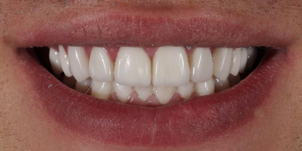 Восстановление зубов верхней и нижней челюсти керамическими винирами E.max
