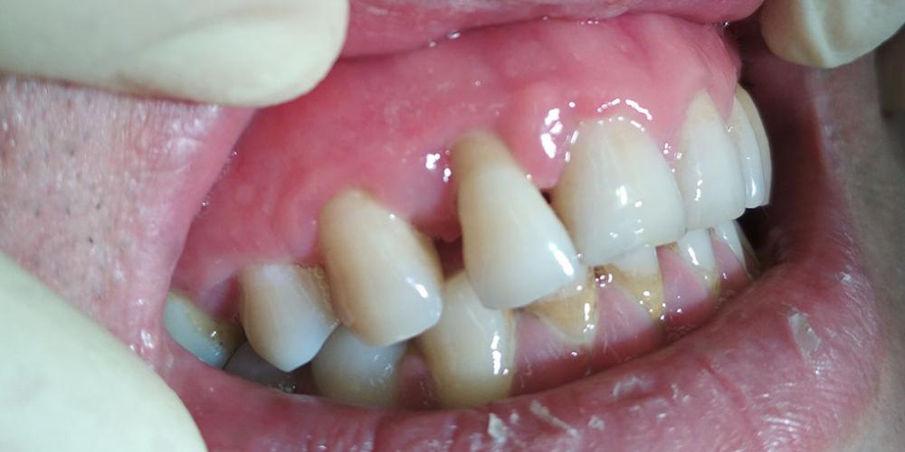 Результат лечения отека десны, кровоточивость при чистке зубов