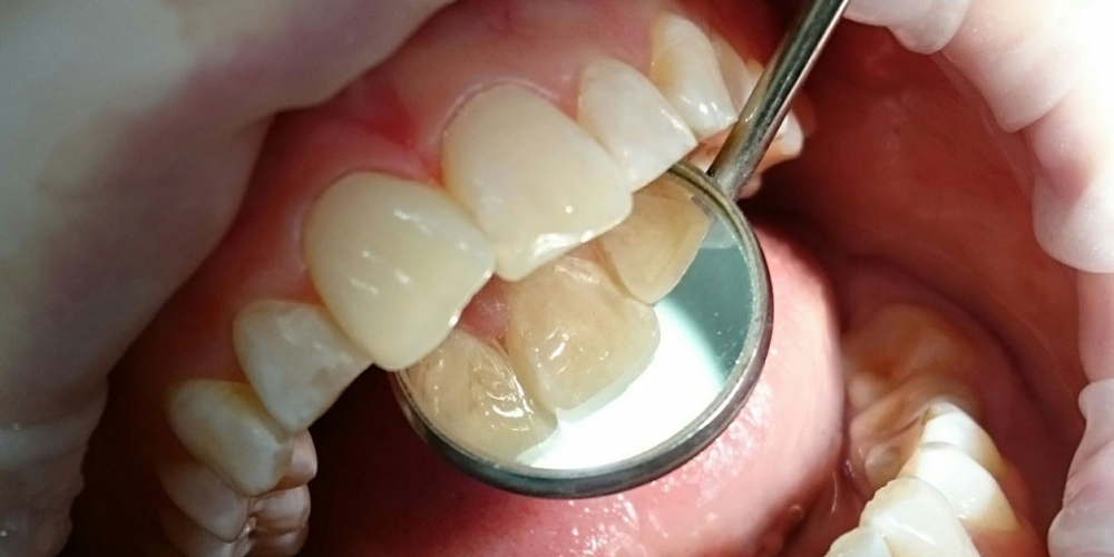 Жалоба на эстетическое несовершенство 2.1 зуба и потемнение между 1.1 и 2.1 зубами