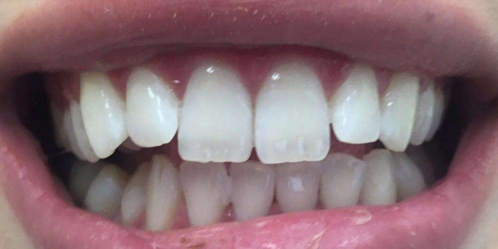 Результат отбеливания зубов с помощью системы Zoom 3