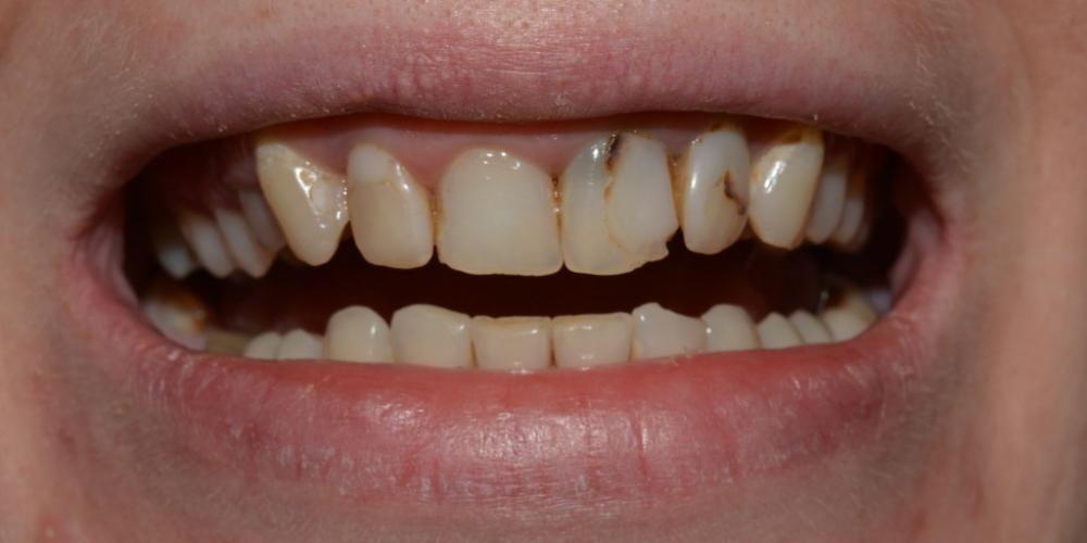 Протезирование цельнокерамическими (E.max) коронками передних зубов фото до