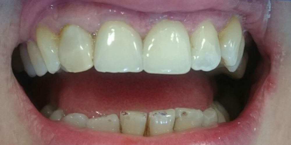 Жалоба на выпадение старой коронки центрального зуба