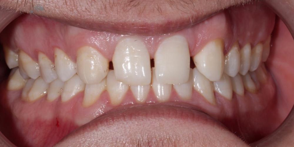 Изменение формы зубов верхней челюсти, коррекция цвета, восстановление функции