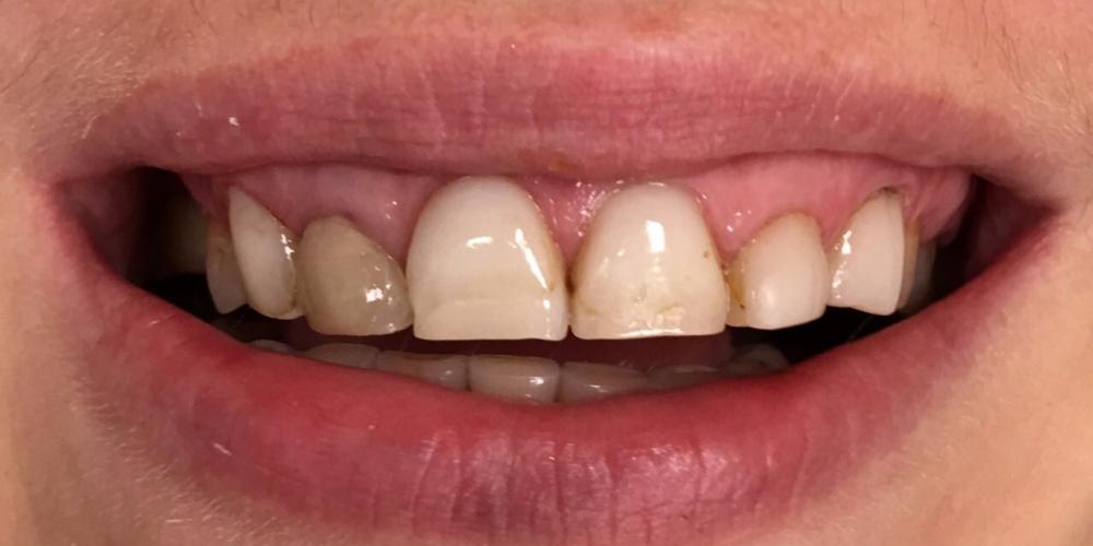 Комплексная реабилитация зубочелюстной системы керамическими винирами и коронками