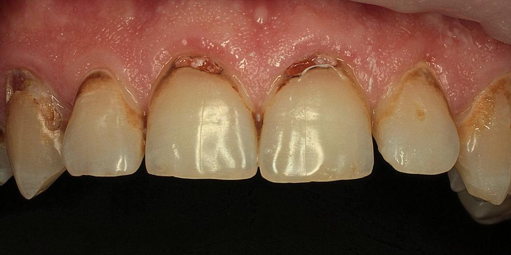 Эстетические реставрации передних зубов