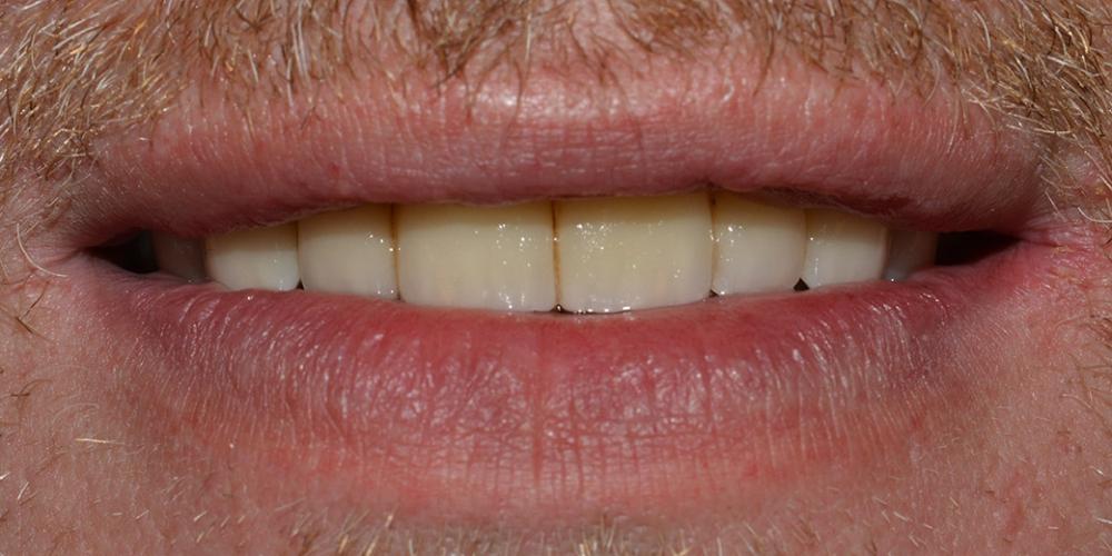 Восстановление зубов ВЧ с использованием имплантатов и мостовидных протезов на своих зубах