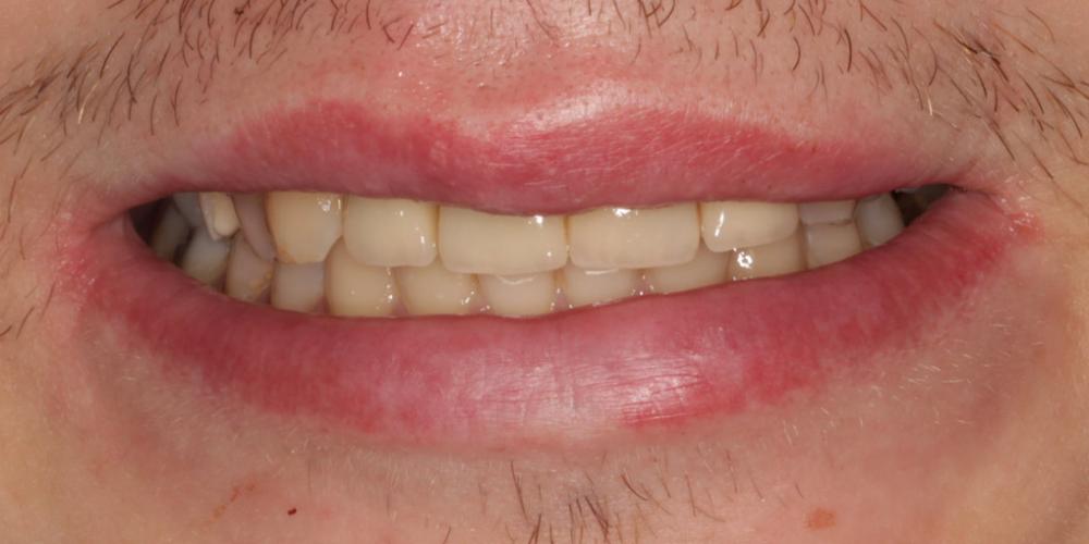 Восстановление центральных зубов верхней челюсти коронками на основе диоксида циркония