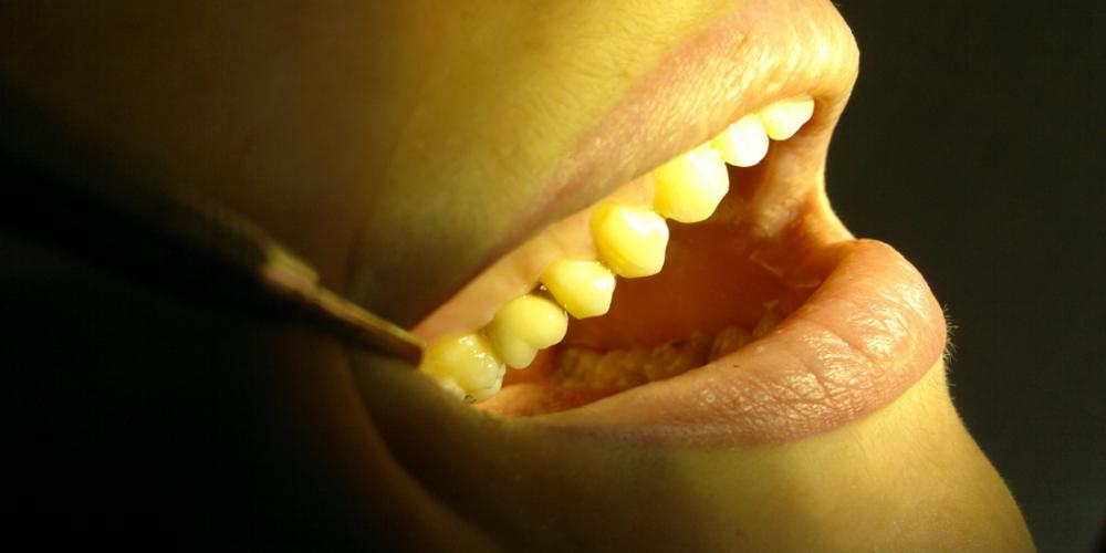 Установка имплантата в область отсутствующего зуба