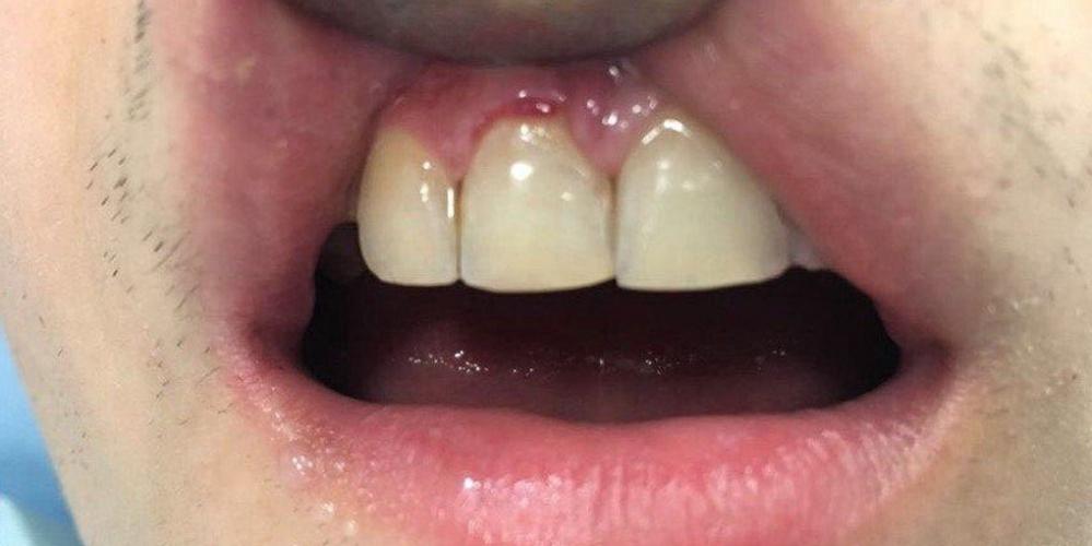Восстановление скола зуба композиционным материалом