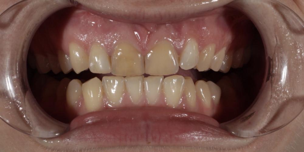 Восстановление резцов верхней челюсти керамическими винирами E.max и отбеливание Zoom3