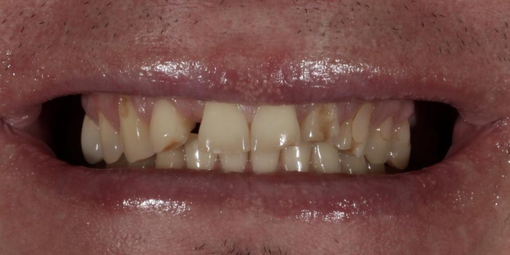 Установка 2 иплантантов Straumann и восстановление формы, функции и эстетики зубов винирами