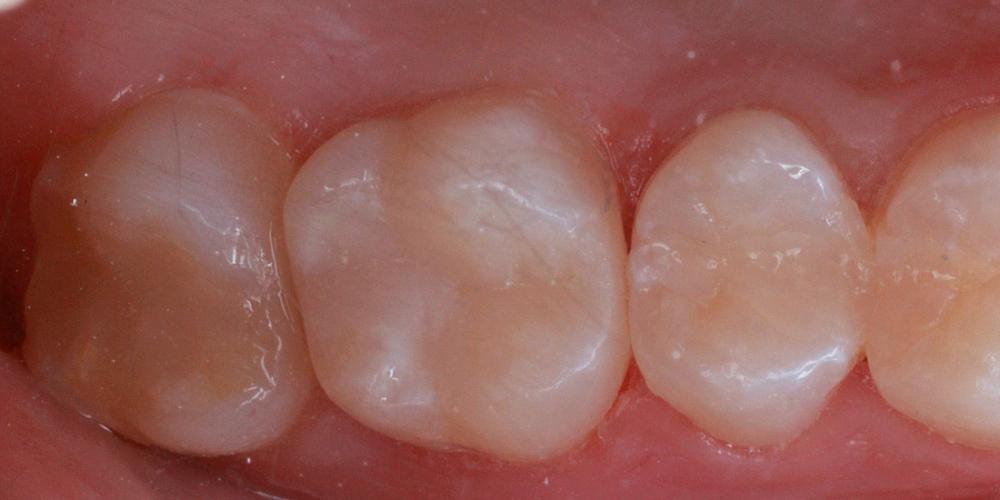 Замена пломбы и эстетическая реставрация жевательного зуба