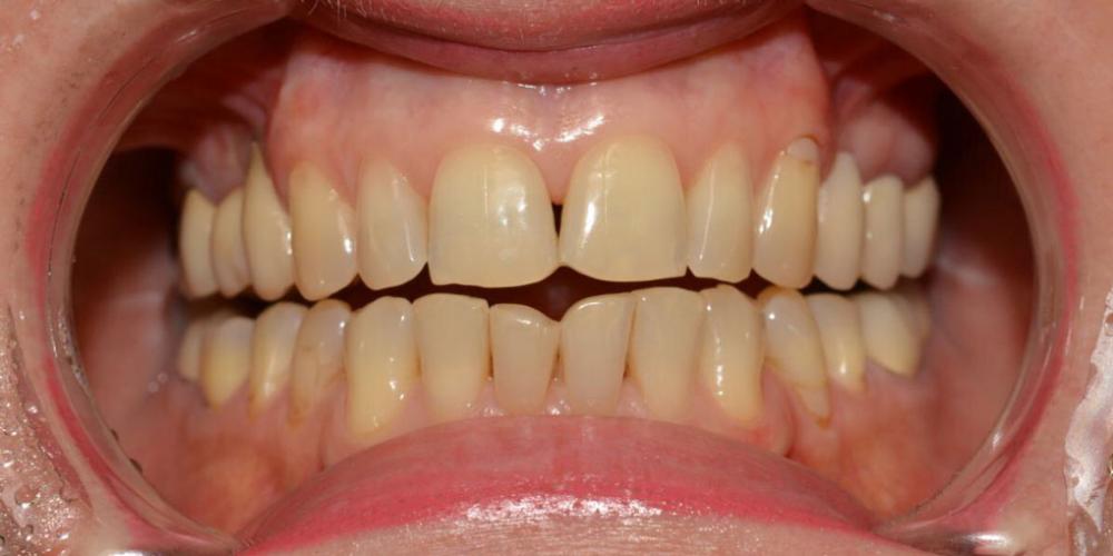 Неудовлетворительная эстетика двух передних нижних центральных зубов