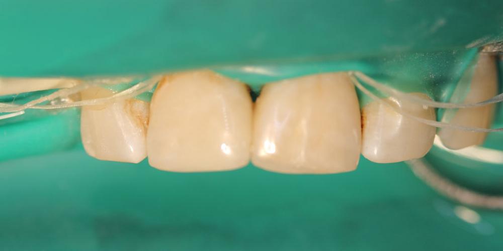 Результат лечение глубокого кариеса двух передних зубов за один прием