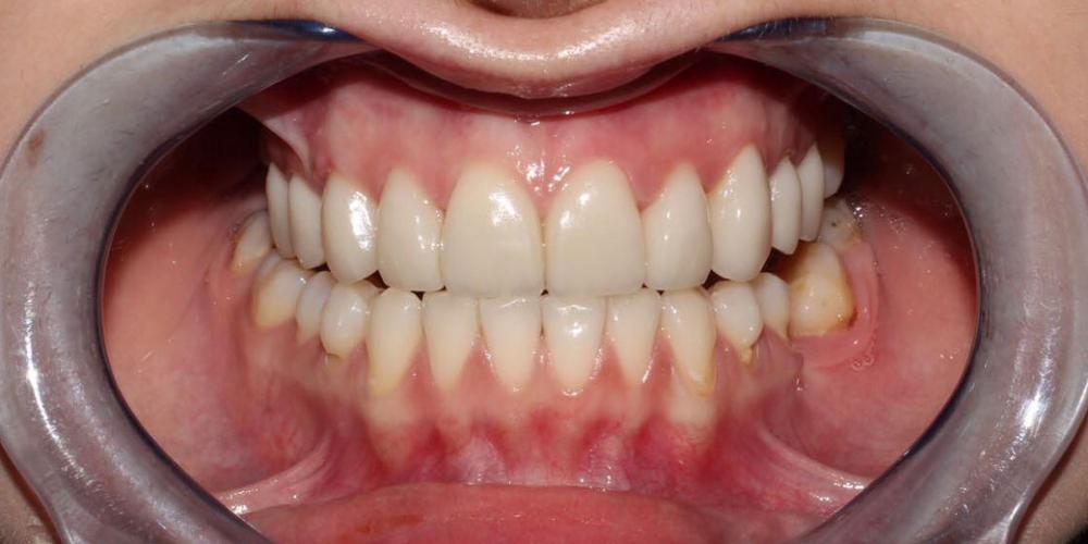 Протезирование верхних зубов керамическими коронками E.max фото после