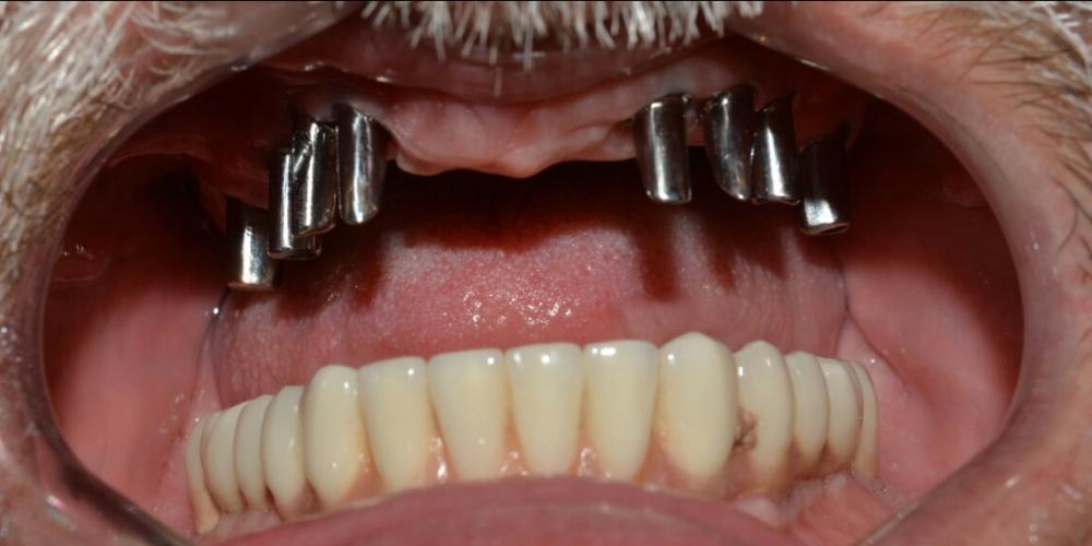 Протезирование металлокерамическими коронками на имплантах на верхней и нижней челюcти
