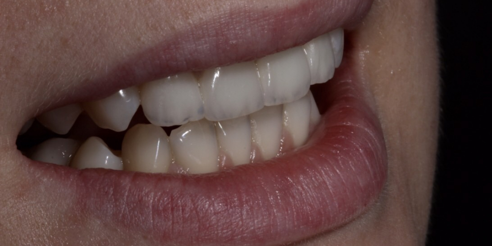 Эстетическое преобразование передних зубов верхней челюсти