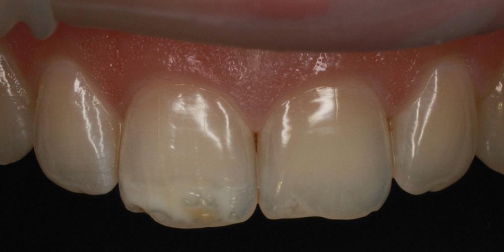 Цельнокерамические виниры E-max на передние зубы