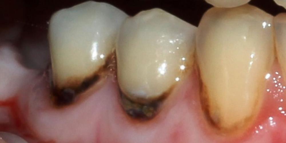 Результат лечения пришеечного кариеса зубов