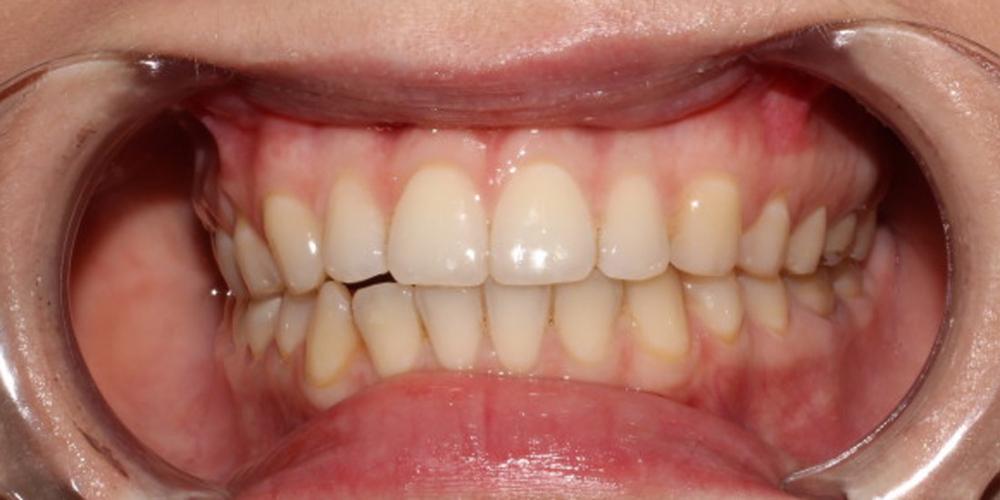 Фото результата отбеливание зубов с помощью системы Zoom 3