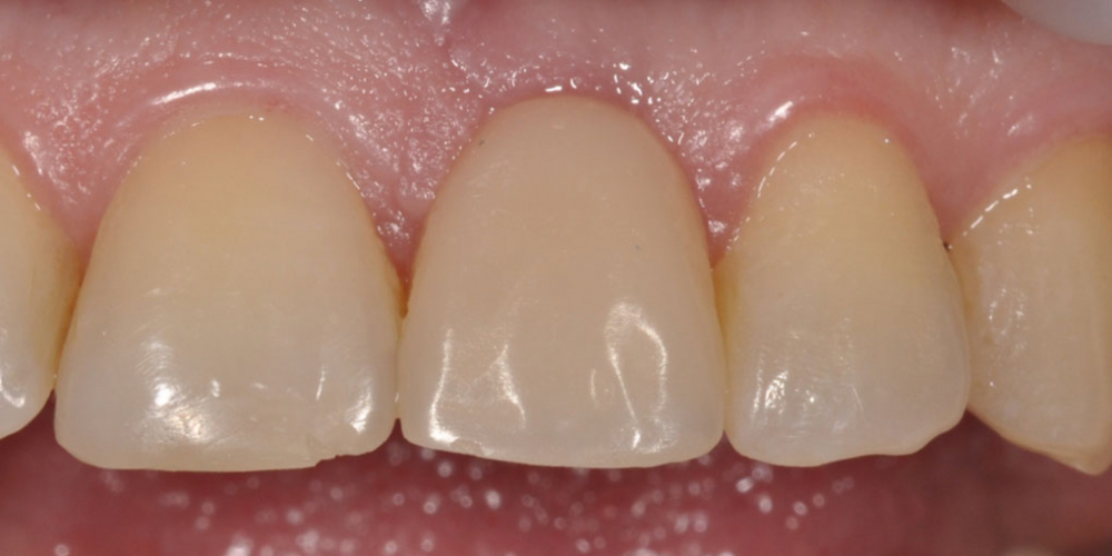 Восстановление зуба с помощью вживления имплантата и коронки
